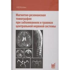 Холин А.В.   Магнитно-резонансная томография при заболеваниях и травмах центральной нервной системы