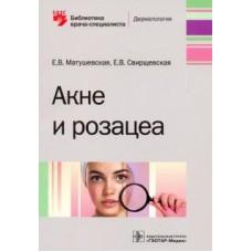 Матушевская Е.В.   Акне и розацеа