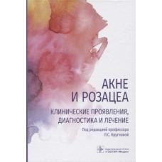 Круглова Л.С.   Акне и розацеа