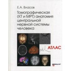 Власов Е.А.   Томографическая (КТ и МРТ) анатомия центральной нервной системы. Атлас