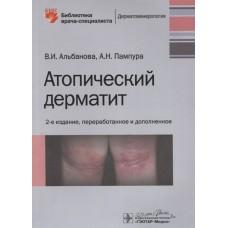 Альбанова В.И.   Атопический дерматит