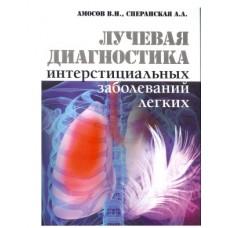 Амосов В.И.   Лучевая диагностика интерстициальных заболеваний легких