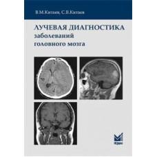 Китаев В.М.   Лучевая диагностика заболеваний головного мозга