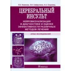 Новикова Л.Б.   Церебральный инсульт. Атлас исследований