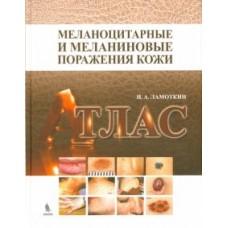 Ламоткин И.А.   Меланоцитарные и меланиновые поражения кожи. Атлас
