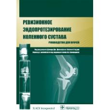 Джакофски Д.   Ревизионное эндопротезирование коленного сустава