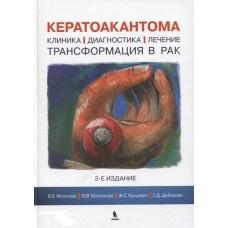 Молочков В.   Кератоакантома