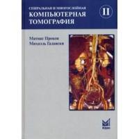 Прокоп М.   Спиральная и многослойная КТ. 2 том