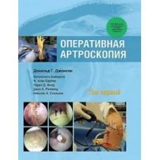 Джонсон Д.Г.   Оперативная артроскопия  т.1