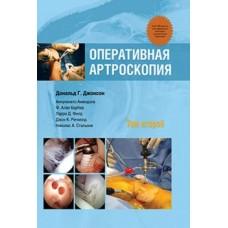 Джонсон Д.Г.   Оперативная артроскопия  т.2